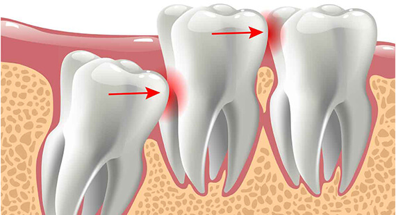 wisdom tooth extraction surgery in Delhi