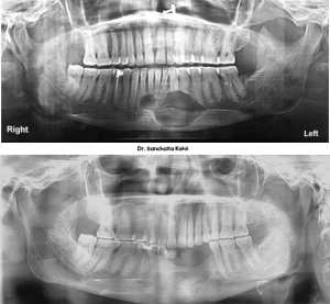 Before After result - trauma and jaw cyst - Dr Sanchaita Kohli
