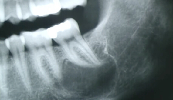 Jaw Cyst Surgery In Delhi