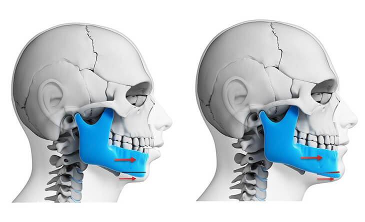 corrective jaw surgery in delhi